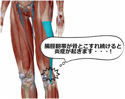 腸脛靭帯が骨とこすれ続けると炎症が起きる