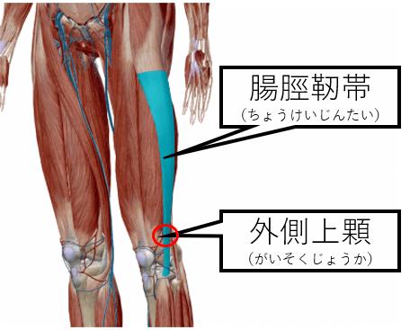 腸脛靭帯炎の画像