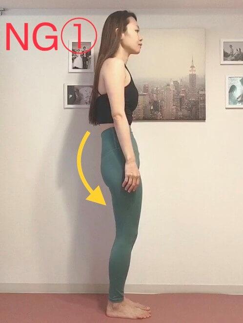 NG1:骨盤が後傾している